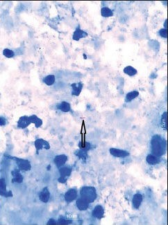 Photomicrograph showing acid fast bacilli of Mycobacterium tuberculosis, marked by arrow (Ziehl Neelsen Stain, ×1000)