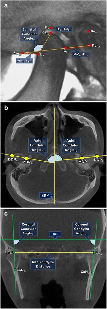 Measurements on 3D CBCT images.a. Sagittal view (Left); b. Axial view; c. Coronal view.