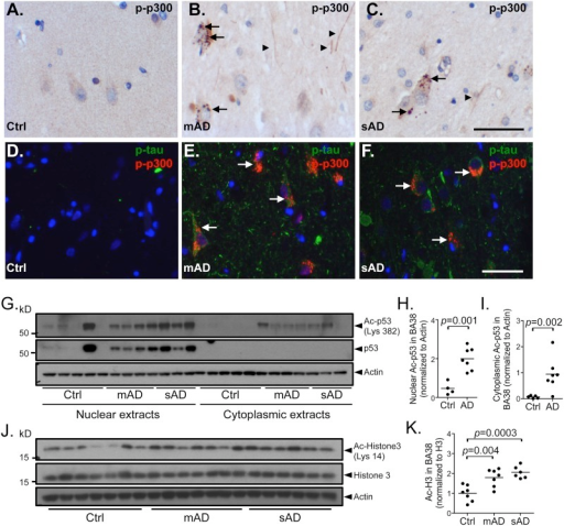 Increase in p300 acetyltransferase activity in moderate (mAD) and severe AD (sAD) cases.Immunohistochemistry and immunofluorescence analyses of phosphor-Ser1834-p300 (p-p300) on paraffin sections from the hippocampal area CA1 of human brains from control (Ctrl) (A, D), moderate AD (mAD) (B, E) and severe AD (sAD) (C, F) show cytoplasmic granular labeling resembling granulovacuolar degeneration in pyramidal neurons (B, C, E, F; arrows) in AD tissue, which co-localize with phospho-tau (p-tau) in ~95% of p-p300-positive neurons (E, F; arrows). p-p300-positive threads (A, D, arrowheads) are also observed in affected tissue. Controls are negative for p-tau and p-p300 (A, D). (G) Immunoblots of nuclear and cytoplasmic fractions of temporal neocortex (BA38) from Ctrl, mAD and sAD cases show an increase in Ac-Lys382-p53 (Ac-p53) in AD (n = 7, mAD+sAD) compared to control (n = 5) in both fractions. Quantification using densitometric analysis reveals a significant increase in Ac-p53 in nuclear (H, p = 0.002) and cytoplasmic (I, p = 0.001) fractions compared to controls. (J) Immunoblots of whole tissue extracts from BA38 from Ctrl, mAD and sAD cases also show a significant increase in Ac-Lys14-Histone 3 (Ac-H3) in mAD (n = 7) and sAD (n = 6) compared to Ctrl (n = 7). (K) Quantification reveals a statistically significant increase in Ac-H3 in mAD (p = 0.004) and sAD (p = 0.0003) compared to control. Comparisons were made using a Student's t-test. Control case 4 is a statistical outlier, more than 3 standard deviations above the mean, and was excluded from the analysis. (A–C) Scale bar = 50 μm, (D–F) scale bar = 50 μm.