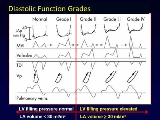 Diastolic function grades: Left ventricular (LV) diastolic function ranges from normal (Grade 0) to impaired relaxation (Grade I), to pseudonormal (Grade II), to restrictive (Grade III), and irreversibly restrictive (Grade IV). LV relaxation and left atrial pressures (LAp) increase from Grades 0 to IV, as does LA volume. Mitral valve inflow (MVI), tissue Doppler imaging, Valsalva manoeuver, flow propagation velocity (Vp) and pulmonary venous flow are all helpful in distinguishing Grades of LV diastolic function, and should be used together for an integrated approach to the assessment of diastolic function as recommended in current guidelines (Figure adapted from Reference [31]).