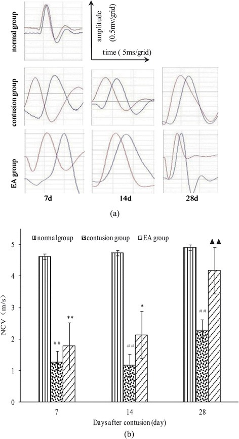Comparison of NCVs at different time points after contusion. (a) NCVs under the condition of fixed transmission distance. The red wave represents electrode 1, and the blue wave represents electrode 2). (b) NCVs at days 7, 14, and 28 in the EA, contusion, and control groups. Contusion versus normal, ##P < 0.01; EA versus contusion, ▲▲P < 0.01; EA versus normal, *P < 0.05, **P < 0.01 (n = 5).