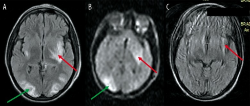 A 28-year-old female presented with pre-partum fits (eclampsia). (A) FLAIR image reveals typical signal-intensity changes suggestive of PRES in both occipital lobes (green arrow), as well as in the insular cortex bilaterally (red arrow), left internal capsule and left lentiform nucleus. (B) DW image reveals high signal in the left lentiform and left insular cortex (red arrow) as well as the right. occipital lobe cortex (green arrow). (C) FLAIR image at follow-up reveals persistent infarction in the left insular cortex (red arrow).