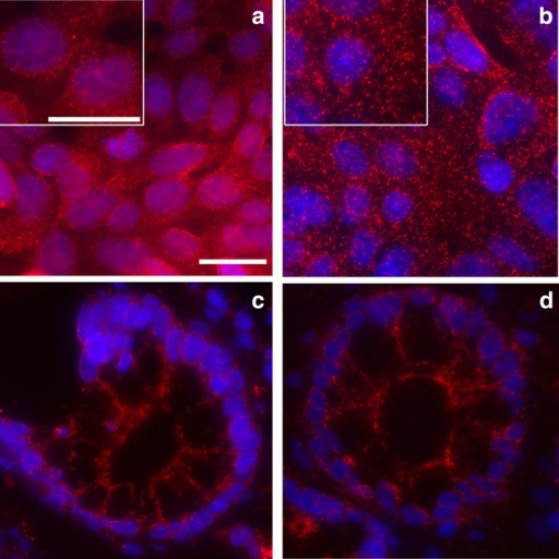 Comparison proxHCR with in situ PLA.Interaction between E-cadherin and β-catenin in DLD1 cells (a: proxHCR; b: in situ PLA). The inlay panels in the upper left corner of a and b show a 150% magnification for better evaluation of signal size and number. The same interaction in frozen colon tissue also resulted in comparable results between proxHCR (c) and in situ PLA (d). White scale bars, 20 nm.