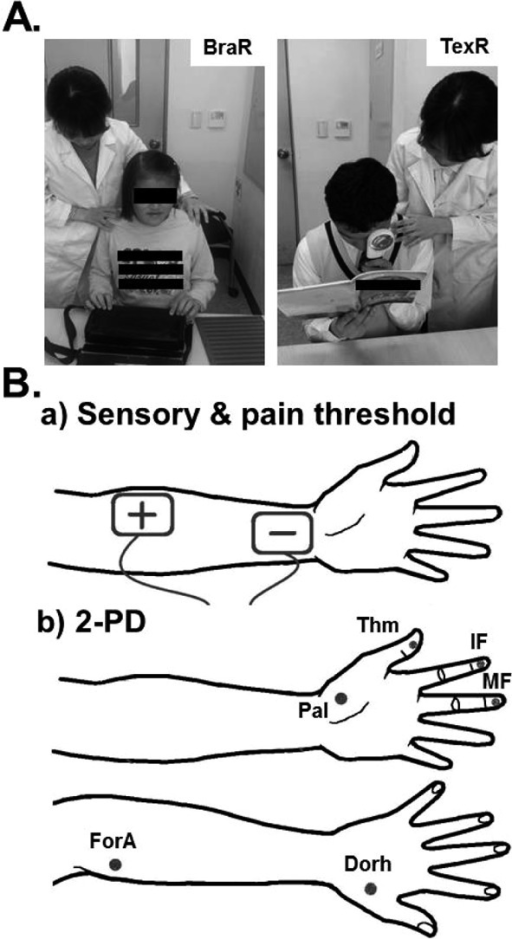 Schematic and photographic representation of the experimental methods used formeasuring threshold. Sensory threshold was determined as described in the Subjects andMethods section. BraR: Braille reading group; TexR: text reading group; +: anode; −:cathode; 2-PD: two-point discrimination; Thm: thumb; IF: index finger; MF: middlefinger; Pal: palm; for a: forearm; Dorh: Dorsal hand