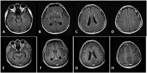Follow-up axial FLAIR (A-D) and T1WI postcontrast (E-H) imaging show subtle focal hyperintensities without mass effect. No abnormal enhancing lesions are seen in parenchymes but asymmetric focal prominent leptomeningeal enhancement in right parietal cortex is noted.