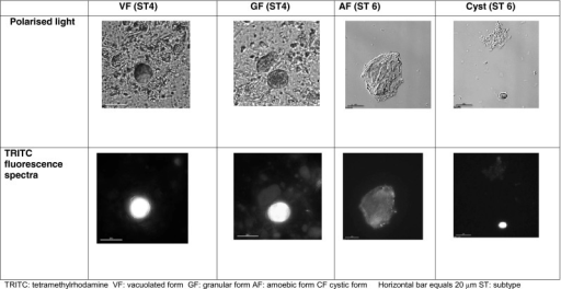 Autofluorescence of different morphological forms of Blastocystis spp.