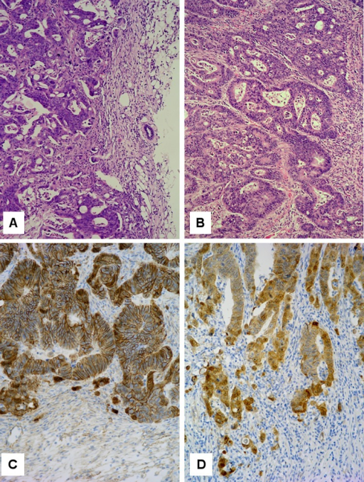 Tumor histology.H & E sections of (A) HROC40-PDX and (B) its primary. Note the invasive edge towards the right. Principal morphological features are retained in the PDX. β-catenin immunohistochemistry of (C) HROC60-PDX and (D) its primary. Note nuclear β-catenin translocation at the invasive edge of both tumors.