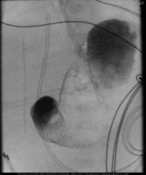 Antegrade movement of contrast through pylorus to first part of duodenum with no further antegrade movement during study.