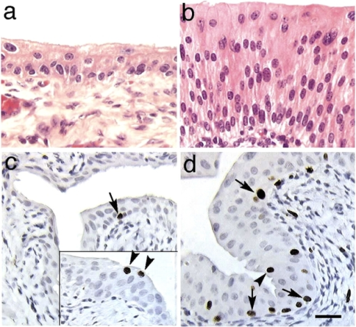 UPII-deficient urothelium lacked a typical umbrella cell layer and became hyperplastic. Paraffin sections of the normal (a) and UPII-deficient (b) bladders of 1-mo-old male mice were stained with hematoxylin and eosin. Those of normal (c) and UPII-deficient (d) bladders of 19-day-old male mice were isolated 2 hr after the final i.p. injection of BrdU and were stained immunohistochemically for BrdU. The inset in c shows an area with some BrdU-incorporating superficial cells. Note the increased thickness and the elevated BrdU incorporation (10.7 ± 1.1% vs. 0.12 ± 0.07%) of the UPII-deficient urothelium. Also note that although most of the labeling occurred in basal cells (arrows), there was occasional labeling of superficial cells (arrowheads). A total of eight UPII-deficient mice and eight normal mice, half of them male, were studied; 1,000–2,000 urothelial cells were examined per section from each animal; P < 0.001; with no significant gender differences. Bar, 50 μm.