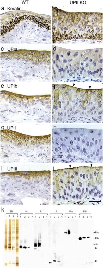 Altered uroplakin expression pattern in the UPII-deficient urothelium. Paraffin sections of wild-type (WT; a, c, e, g, and i) or UPII-deficient (UPII KO; b, d, f, h, and j) mouse urothelium were immunohistochemically stained for keratins (a and b) using a mixture of AE1 and AE3 mouse monoclonal antibodies (Tseng et al., 1982; for review see Cooper et al., 1985), uroplakin Ia (c and d), UPIb (e and f), UPII (g and h), and UPIII (i and j). k shows the silver nitrate–stained (SN) SDS-PAGE patterns of the detergent-insoluble membrane proteins from (lanes 1) bovine urothelium, (2) normal mouse urothelium, (3) UPIII-deficient mouse urothelium, and (4) UPII-deficient mouse urothelium, and the immunoblotting of these proteins using antibodies to UPs Ia, Ib, II, IIIa, and IIIb. Note, in the thickened UPII KO urothelium, the absence of UPII, the diffused cytoplasmic distribution and lack of apical surface association of UPIa, the greatly reduced but still noticeably apical surface association (arrowheads) of UPIb and UPIII, and the reduced amounts of detergent-insoluble uroplakins in the UPIII-deficient urothelium (lanes 3) and their further reduction in the UPII-deficient urothelium (lanes 4). Bar, 50 μm.