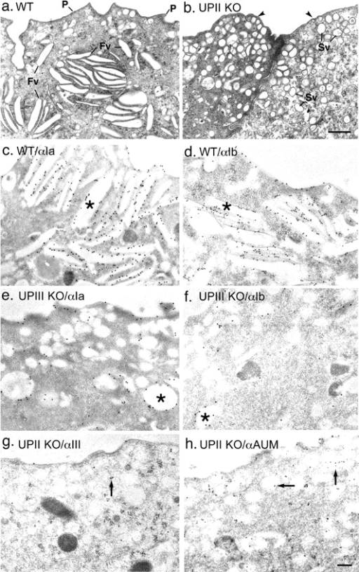 The replacement of the fusiform vesicles by small spherical vesicles that delivered the remaining uroplakin pair in uroplakin-deficient urothelium. The urothelia from age-matched 3-mo-old wild-type (a, c, and d), UPII-deficient (b, g, and h), and UPIII-deficient (e and f) mice were examined by thin section (a and b) and immunolabeling (c–h) transmission EM. Normal uroplakin-delivering fusiform vesicles (a, c, and d) were completely replaced by numerous small, spherical, immature-looking spherical vesicles in UPIII-deficient (e and f) and UPII-deficient (b, g, and h) urothelia. Note the strong labeling of normal fusiform vesicles (*) by antibodies to uroplakins Ia (c) and Ib (d), the moderate staining of the spherical vesicles in the UPIII-deficient urothelium (which still expressed the UPIIIb isoform; e and f), and the weak staining of the small vesicles (arrows) in the UPII-deficient urothelium by anti-UPIII (g) and by a rabbit antiserum to total uroplakins (h). Arrowheads (b) indicate the smooth apical surface of the UPII-deficient urothelium. Fv, fusiform vesicle; P, plaque; Sv, small vesicle. Bars: (a and b) 0.5 μm; (c–h) 1 μm.