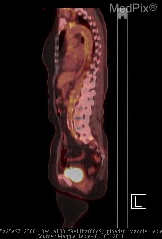 Sagittal fused PET/CT image showing diffuse abnormal FDG uptake in the aorta.