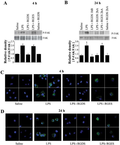 Effects of RGDS on FAK phosphorylation in lung tissue (A, B), and fibrinogen binding activity in alveolar macrophages (C, D). Where indicated, mice were administered RGDS or RGES (5 mg/kg, i.p.) once 1 h before LPS treatment and sacrificed 4 h post-LPS. Mice were also administered this peptide (5 mg/kg, i.p.) once 1 h before or 2 h after LPS and sacrificed 24 h post-LPS. (A, B) Western blotting with each anti-specific (phospho) FAK Ab was performed on lung tissue homogenates. Relative values for phosphorylated FAK versus FAK are indicated below the gel. Values represent means ± SEM of 5 mice per group. *Significantly different from saline treated controls, p < 0.05; +significantly different from animals treated with LPS only, p < 0.05. (C, D) Alveolar macrophages were incubated with fibrinogen conjugated to Alexafluor-488 for 20 min. After exposure to fibrinogen for 20 min, cells were fixed and then analyzed by confocal fluorescence microscopy. The results are representative results obtained from 5 mice per group.