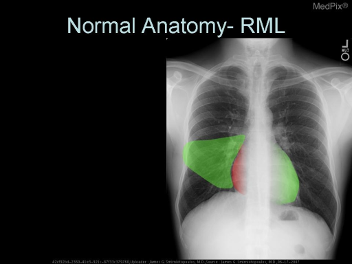 RML - Right Middle Lobe.  Lesions here may silhouette the right heart border - which is shown in red.