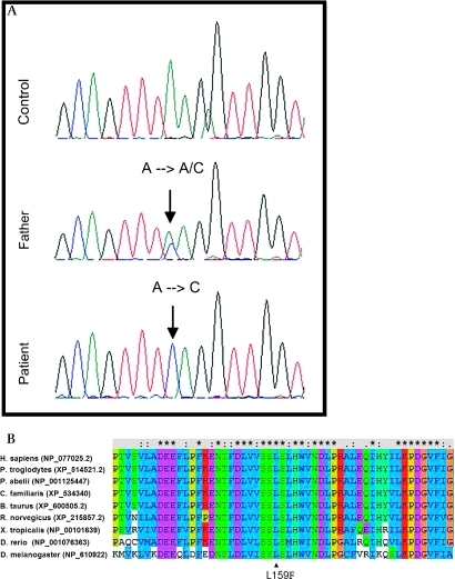 Mutation analysis in the C20orf7 gene reveals a c.477A→C mutation changing leucine at position 159 to phenylalanine. (A) Sequence analysis of exon 5 of the C20orf7 gene. (B) Conservation of leucine 159 from man to Drosophila (ClustalW).