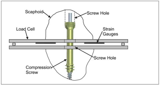 Figure 3 A Comparison Of Two Headless Compression Screws