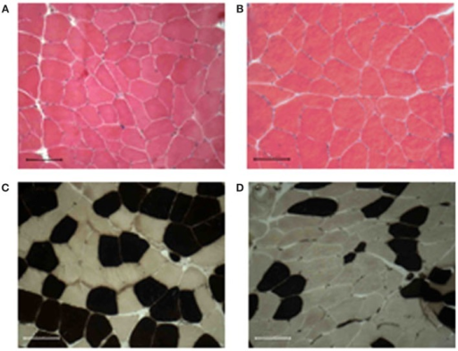 Muscle morphology and fiber-type distribution. All muscle biopsies present well-packed myofibers, without signs of fibrosis, and inflammatory cell infiltration before (A) or after 9 weeks of training (B). The training induced an increase of either diameter and percentage of the fast-type fibers [brown stained (C,D)]. Bar 100 μm.