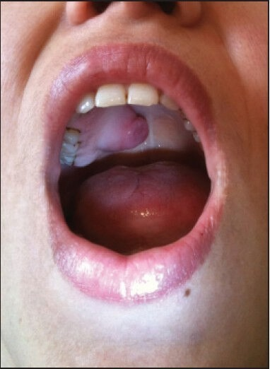 Lesion manifested as a mass in hard palate