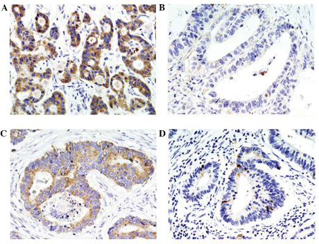 Immunhistochemical staining of Smac/DIABLO in gastrointestinal carcinomas. Smac/DIABLO immunoreactivity was predominantly observed in the cytoplasm. (A) High expression of Smac/DIABLO in gastric carcinoma. (B) Low expression of Smac/DIABLO in gastric carcinoma. (C) High expression of Smac/DIABLO in rectal carcinoma. (D) Low expression of Smac/DIABLO in rectal carcinoma. Smac/DIABLO, second mitochondria-derived activator of caspases/direct inhibitor of apoptosis-binding protein with low pI. (A–D, magnification, ×200).