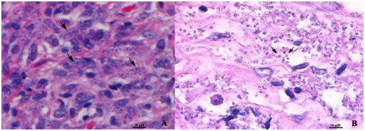 Numerous intracellular amastigotes (arrows) shown in a tissue biopsy of nodule from brow (A) and in a section of tissue submerged in Schneider's insect medium (B) with H&E staining. N, nucleus; K, kinetoplast (magnification x1000).