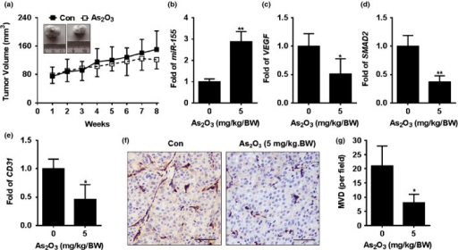 Effects of As2O3 on miR-155/SMAD2 and on the angiogenesis in vivo. After PC-3 cells were injected s.c. into the right armpit of the mice for 3 weeks, As2O3 (0 or 2 mg/kg·BW) was administered (i.p.) twice per week. After 8 weeks, the mice were killed, and the tumor tissues were removed for further investigation. (a) Tumor images (top) and tumor volumes (bottom) were measured weekly and tumor size was calculated using the formula: V = ½ (width2 × length); (b–e) Total RNA isolated from tumors (n = 6) were mixed, quantitative RT-PCR analyses in triplicate of the (b) miR-155, (c) VEGF, (d) SMAD2 and (e) CD31mRNAs. (f) Immunohistochemistry analyses of CD31 (bar = 100 μm). (g) Angiogenesis quantification by microvessel density. *P < 0.05 and **P < 0.01 compared with mice treated with no As2O3.