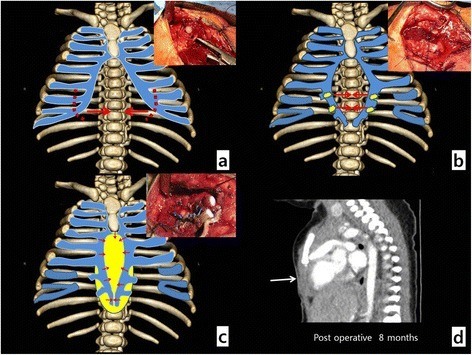 operative findings. (a) lowermost costal cartilage rese | open-i, Human body