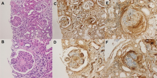 Renal periostin immunostaining in patients with diabetic nephropathy.Tissue sections were immunostained with a polyclonal rabbit anti-periostin antibody. Positive staining for periostin protein is shown in brown. All sections were counterstained with hematoxylin. Kidney tissues from patients with diabetic nephropathy display nodular glomerulosclerosis with arteriolar hyalinosis, interstitial fibrosis and tubular atrophy (A, B) and display diffuse periostin immunopositivity in glomerular and tubular compartments (C). Periostin staining was observed in the nodular sclerosis glomerulus with periglomerular and mesangial areas and also periostin staining in both atrophic and non-atrophic tubular epithelium (D). Periostin staining was found in the area of periglomerular fibrosis and collagen forming Bowman's capsule within the ischemic type-change glomerulus (E). Global glomerulosclerosis showed periglomerular staining with periostin immunohistochemistry (F) (Original magnification: 400×).