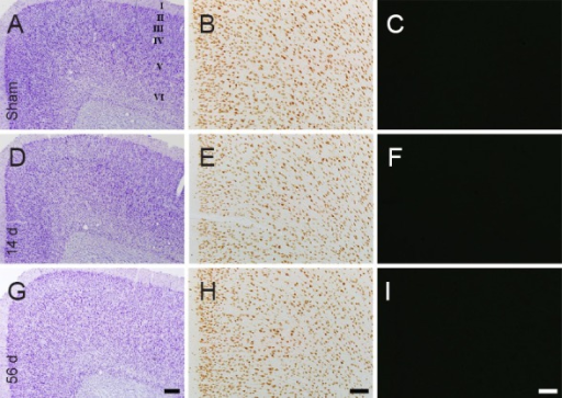 "Cresyl violet (CV) staining (the left panels), NeuN immunohistochemistry (the middle panels) and Fluoro-Jade B (F-J B) histofluorescence staining (the right panels) of the cingulate cortex in the sham-operated rats (sham; A–C) and myocardial infarction (MI) rats at 14 (D–F) and 56 days (G–I) after MI.In the MI groups, patterns of CV-, NeuN- and F-J B-positive cells in the cingulate cortex are similar to those in the sham group. ""I–VI"" indicate layers of the cingulate cortex. Scale bars: 200 μm in A, D, G and 100 μm in B, C, E, F, H and I. d: Days."