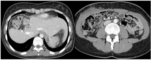 Abdominal CT scan obtained after the second carboplatin session with doxorubicin chemotherapy showing that the amount of ascites had decreased.