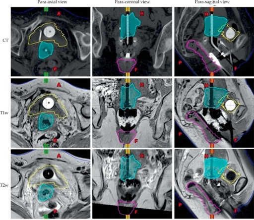 Comparison of CT, T1w and T2w images of a patient with a titanium ring and tandem in place. Transverse view of CT (top row), T1w (middle row) and T2w (bottom row) of a patient's pelvis with para-axial view showed in left panel and para-coronal and para-sagittal views showed in middle and right panels, respectively. The volumes are as follows: high-risk CTV (cyan), bladder (yellow), rectum (magenta). A – anterior, P – posterior, H – head, F – feet