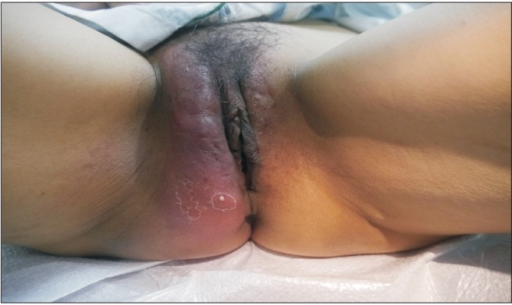 This postmenopausal woman has a vulvar abscess caused by Methicillin-resistant staphylococcus aureus (MRSA) involving the right labium major. Note the increased size, a background of erythema about the right labium major when compared with the left labium.