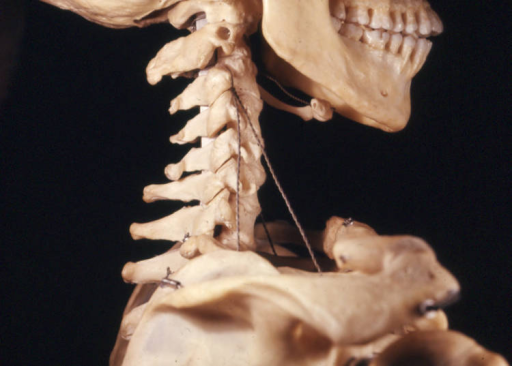 cervical vertebral body