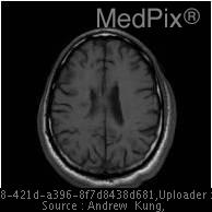 Multiple hypointense lesions are noted within the white matter.