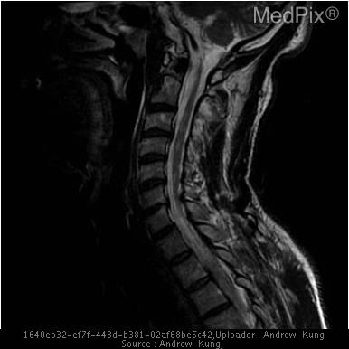 Sagittal T2-weighted MRI of the cervical spinal cord with multiple areas of abnormal high-signal intensities.
