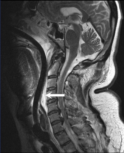 After surgical decompression, hematoma size is demonstrably reduced (arrow) in this sagittal MRI.