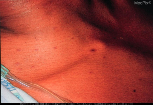 Violaceous papules on torso.