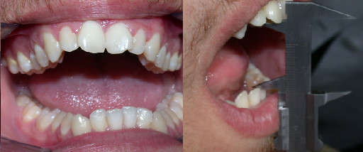 Pre-treatment maximal active mouth opening.