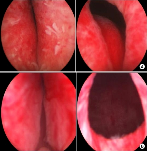 Anatomical differences in IPP configuration between trilobar (A) and bilobar (B) adenomas. IPP: intravesical prostatic protrusion.