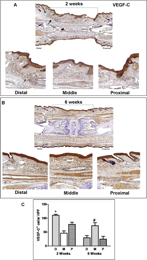 Lymphatic regeneration after tissue transfer is associated with expression of VEGF-C.A. VEGF-C expression in skin-grafted tails 2 weeks after surgery. Representative low power (2x; upper panel) photomicrographs encompassing the skin-grafted area and distal/proximal portions of the recipient mouse-tail are shown. High power (20x) views of the distal and proximal junctions between recipient tissues and skin grafts are shown below. Black arrow shows large number of VEGF-C+ cells in the distal junction. Dashed box delineates skin-grafted area. B. VEGF-C expression in skin-grafted tails 6 weeks after surgery. Representative low power (2x; upper panel) and high power (20x) photomicrographs encompassing the skin-grafted area and distal/middle/proximal portions of the recipient mouse tails are shown. Dashed box delineates skin-grafted area. Note small amount of wound/skin graft contracture after repair. C. Cell counts per high power field of VEGF-C+ cells in the various tail regions (D = distal, M = middle, P = proximal) 2 and 6 weeks after surgery. Cell counts are means ± SD of at least 4 high power fields/mouse/time point. At least 6 mice were analyzed in each group (*p<0.05; #<0.01).