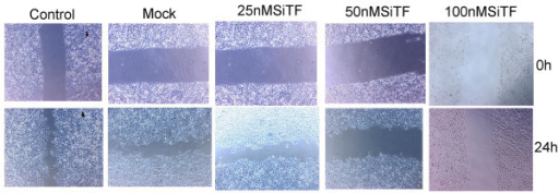 Knockdown of TF with TF-siRNA attenuated the migration ability of lung adenocarcinoma cells in vitro. Representative images of the wound healing assay were shown (×40).