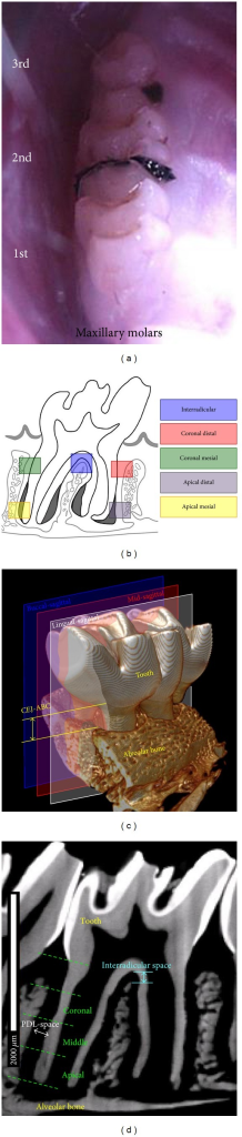 In vivo rat ligature model for the induction of acute periodontitis. (a) Photograph illustrates lipopolysaccharide (LPS) soaked 4–0 braided silk threads in the diastemata flanking left/right second maxillary molars. Controls were flossed in the same interproximal regions. (b) Schematic illustrates the targeted regions of the fibrous joint within the study. (c) 3D tomogram illustrates the lingual-sagittal, mid-sagittal, and buccal-sagittal 2D virtual sections through a second maxillary molar used for morphometrics. Anatomical landmarks used to measure alveolar bone crest recession (CEJ-ABC) are indicated. (d) 2D virtual section illustrates anatomical landmarks to measure interradicular distance and PDL width. Division of the bone-PDL-cementum complex into coronal, middle, and apical sections for PDL-space measurements is also illustrated.