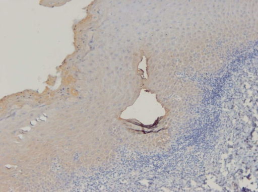 IHC staining of OLP demonstrates high expression (score 4) of SMAD3 (X400).