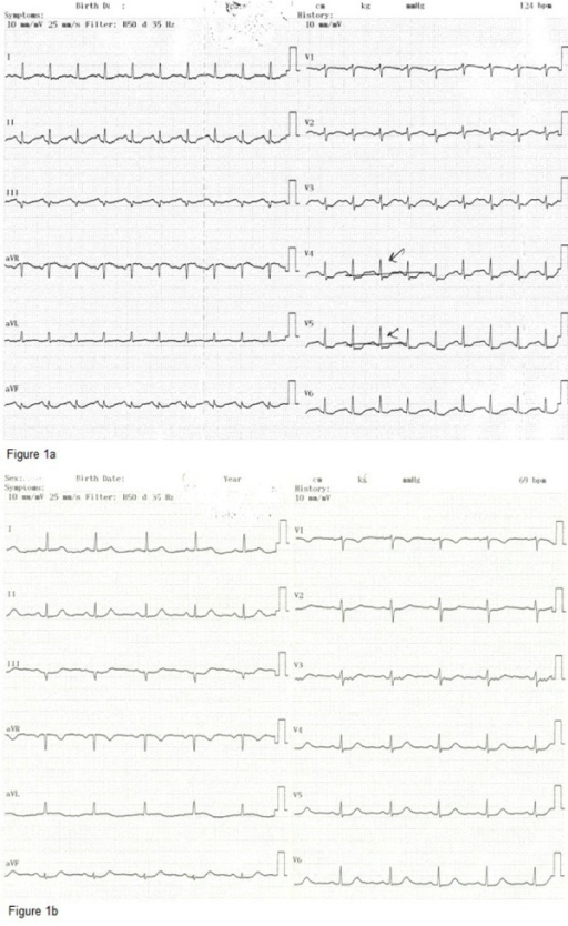 Figure 1a. The Initial ECG of Case 1; The Results Revealed Sinus Tachycardia at 124 bpm and ST Depression in V3 - V6 and DI-AVL Derivations Figure 1b. Control ECG of Case 1; Heart Rate Was Reduced to 69 bpm and ST Depressions Were Completely Resolved on the ECG