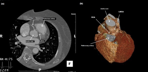 Multidetector Computed Tomography (MDCT); LMCA Coursed between the Aortic Root and Main Pulmonary Artery and Gave off the Left Anterior Descending and Left Circumflex Arteries in Their Normal Position. (a) Female Patient (Case 1), (b) Male Patient (Case 2)
