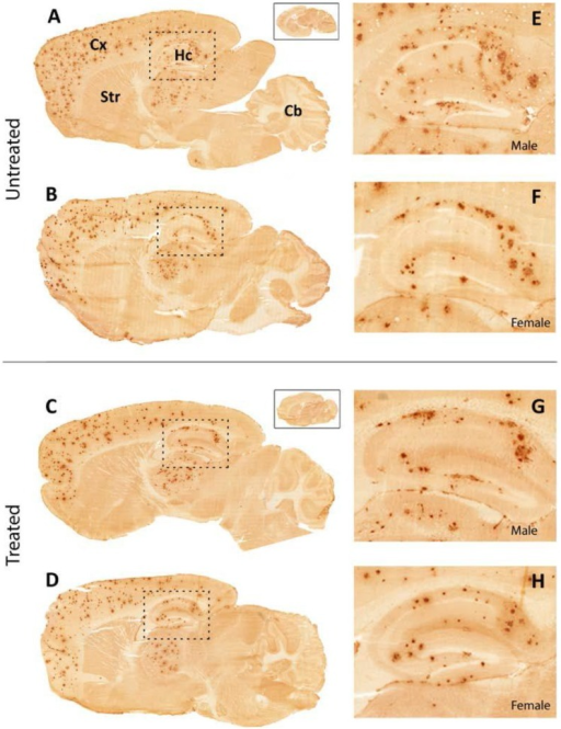 Immunohistochemistry for Aβ-deposits in the male and female mouse brain.Immunohistochemistry for amyloid (Aβx-40) in the right hemisphere of male and female mouse brain. Aβ-deposits are found throughout the cerebral cortex (Cx) and hippocampus (Hc) in all animals regardless of treatment. Enlarged images E–H show morphological details in the hippocampus. Insets show sections from wild-type animals of corresponding genders demonstrating that background staining was low.