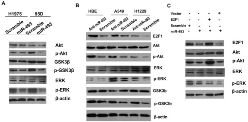 miR-493 inhibits the AKT and ERK pathways by targeting E2F1.(A) miR-493 overexpression reduced the activity of the AKT and ERK pathways in 95D and H1975 cells. (B) The knockdown of miR-493 by with anti-miR- 493 increased the activity of AKT and ERK signaling in HBE, A549 and H1299 cells. (C) miR-493 (or scramble control) transfection followed by E2F1 (or mock vector) transfection 24 hours later in 95D cells affects AKT and ERK signaling. The AKT pathway activity was measured by examining the expression of phosphorylated AKT (pAKT), whereas the EKR pathway activity was measured by examining expression of phosphorylated ERK (pERK).