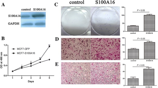 Up-regulation of S100A16 increased the capacities of proliferation, migration and invasion in MCF-7 cells. (A) S100A16 was transfected in MCF-7 cells. Western blot was used to measure S100A16 protein expression in control cells (MCF7-GFP) and S100A16 overexpression cells (MCF7-S100A16). (B) MTT assay showed that the cell proliferation rate was increased after S100A16 overexpression in MCF-7 cells (Bars, mean ± SD, *P < 0.05, **P < 0.01). (C) Colony formation assay confirmed that up-regulation of S100A16 markedly increased the number of cell colonies in MCF-7 cells (P < 0.05). (D, E) Transwell migration and invasion assays showed that up-regulation of S100A16 increased cell migration (D) and invasion (E) abilities compared with control cells (P < 0.05). Triplicate assays were used for each experiment (Magnification, 10×).