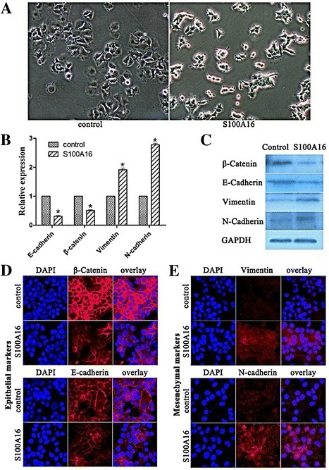 Overexpression of S100A16 promoted EMT in MCF-7 cells. (A) Compared with control cells (MCF7-GFP), MCF7-S100A16 cells showed spindle-like, fibroblastic morphology (10×). (B, C) qRT-PCR (B) and western blot (C) analyses showed that epithelial markers E-cadherin and β-Catenin were significantly reduced in mRNA and protein levels in MCF7-S100A16 cells compared with MCF7-GFP cells, and mesenchymal markers Vimentin and N-cadherin were significantly up-regulated in MCF7-S100A16 cells (Bars, mean ± SD, P < 0.05). (D, E) Immunofluorescence staining was used to examine the location of epithelial and mesenchymal markers. After fixation, the celluar location of E-cadherin (red), β-catenin (red), Vimentin (red) and N-cadherin (red) were analyzed by confocal microscopy. Cell nuclei were stained with DAPI (4′, 6-diamidino-2-phenylindole, blue). Immunofluorescence staining showed that both E-cadherin (red) and β-catenin (red) resided in the cell membrane and intensity of fluorescence were reduced in MCF7-S100A16 cells compared with MCF7-GFP cells (D), whereas the mesenchymal markers Vimentin (red) and N-cadherin (red) were increased by S100A16 (E).