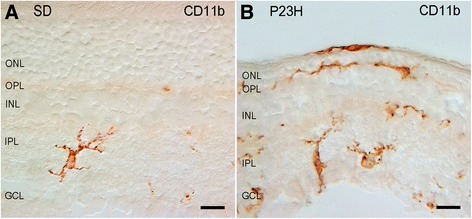 Distribution and morphology of microglial cells in Sprague-Dawley (SD) (A) and P23H (B) rats. Retinal vertical sections were immunolabeled with CD11b (OX-42). Note the presence of amoeboid CD11b-positive cells in different layers of the P23H rat retina, including the subretinal space. GCL, ganglion cell layer; IPL, inner plexiform layer; INL, inner nuclear layer; OPL, outer plexiform layer; ONL, outer nuclear layer. Scale bar: 10 μm.