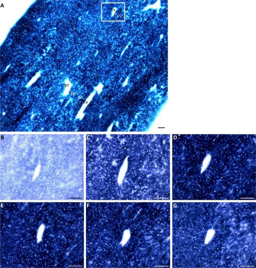 GDH activity staining with NAD+ as coenzyme and various glutamate concentrations. (A) Overview of GDH activity in a mouse liver cryostat section as demonstrated in the presence of 10 mM glutamate. GDH activity was stained in the presence of (B) 0 mM, (C) 2 mM, (D) 5 mM, (E) 10 mM (F) 30 mM, and (G) 50 mM glutamate. Images (B–G) are of the same area in serial sections of (A), as indicated by the rectangle. Abbreviations: pt, portal tract; pp, periportal zone; pc, pericentral zone; cv, central vein. Scale, 100 µm.